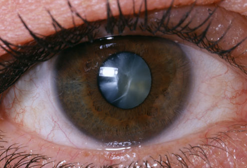 Eye with cataract / Ojo con catarata
